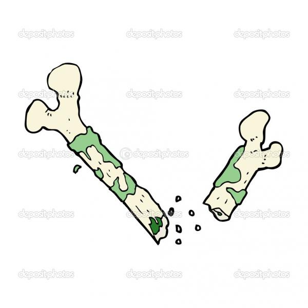 depositphotos_44449345-gross-broken-bone-cartoon.jpg