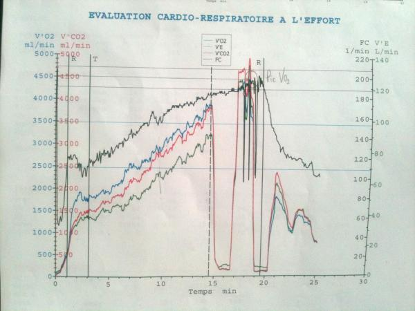 Guillaume deschamps cycliste dop la plume de son plein gr test d 39 effort 410 watts - Test vo2max sur tapis roulant ...