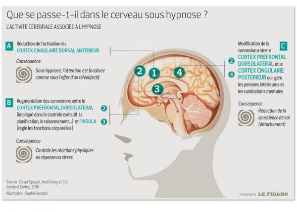 HYpnose2.jpg
